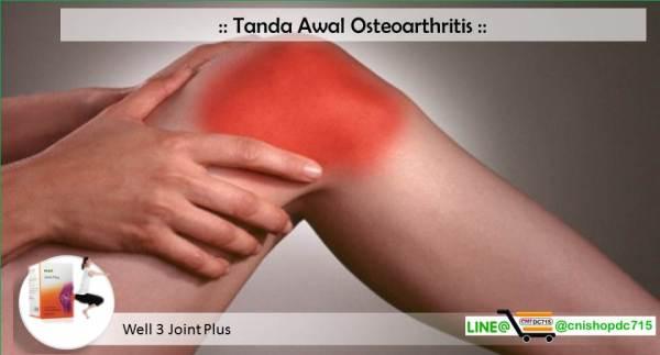 Tanda Awal Osteoarthritis