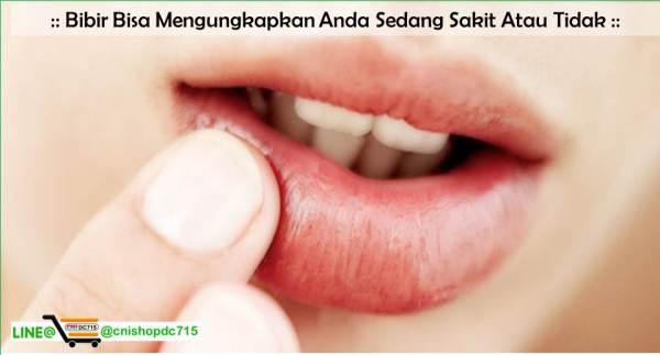 Bibir Bisa Mengungkapkan Anda Sedang Sakit Atau Tidak
