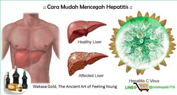 Cara Mudah Mencegah Hepatitis