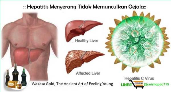 Hepatitis Menyerang Tidak Memunculkan Gejala