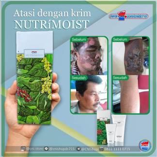 produk-cni-nutrimoist-luka-bakar